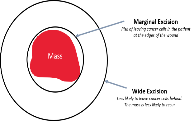 This diagram shows intended 3 cm margins to remove a soft tissue sarcoma. Without these margins, the cancer will reoccur. It is important for the surgeon to take a layer of tissue deep to the cancer as well, in order to be sure to not leave any cancer cells in the patient