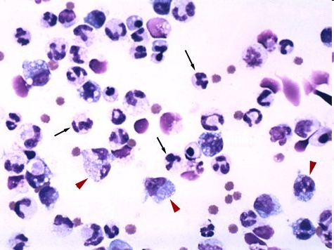 Free abdominal fluid sample from a dog with pancreatitis showing large numbers of neutrophils, many of which have vacuolated cytoplasm.